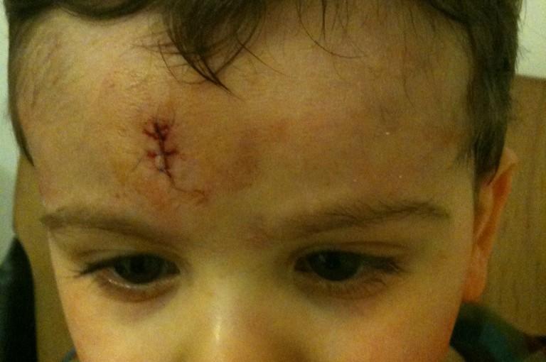 2 ans….comme 2 points de suture?